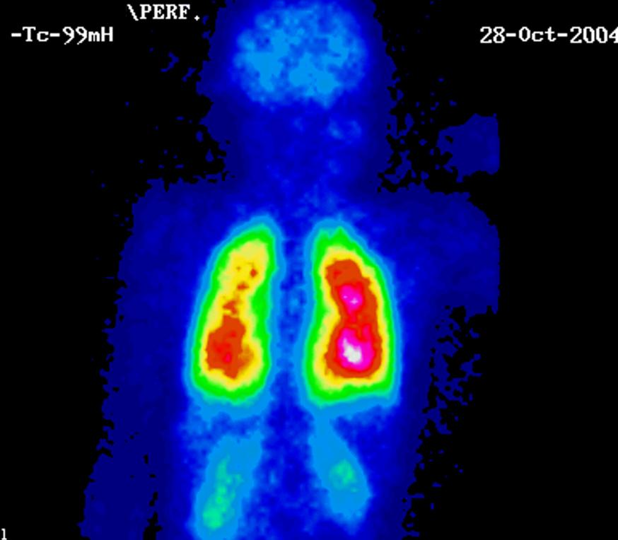 Gammagrafia de tiroides precio peru